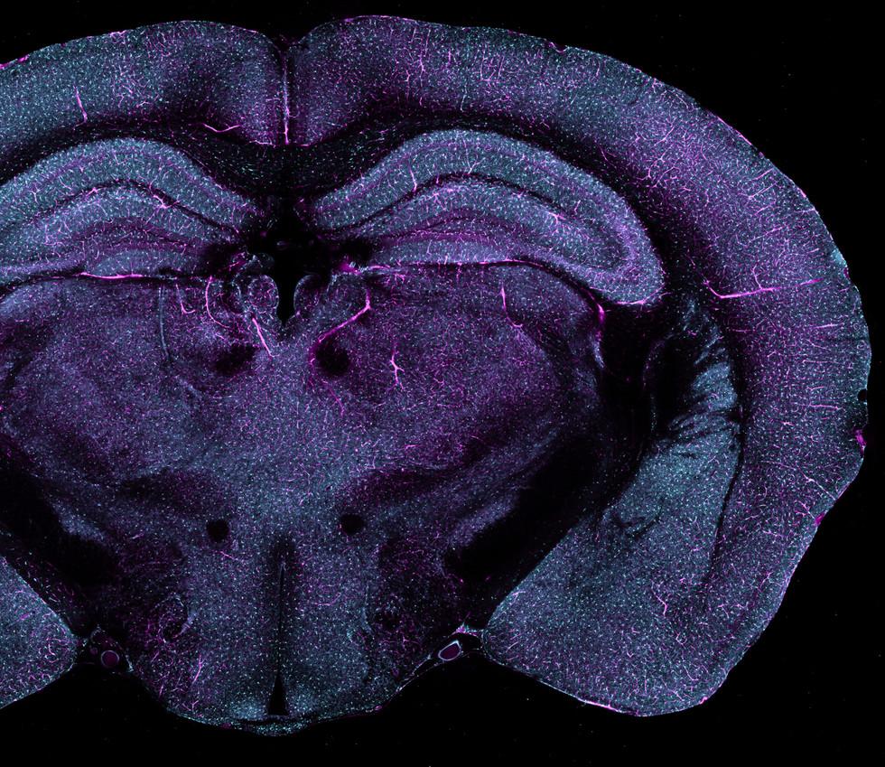 Species: Mouse Tissue: Brain Fluorophore: GFP (Cyan) Fluorophore: Rhodamine-B (Magenta)