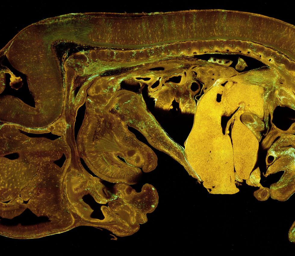 Species: Mouse Tissue: Embryo Fluorophore: Confetti (GFP, YFP, RFP, mCerulean)