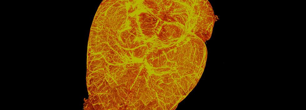 Vasculature Bat Brain