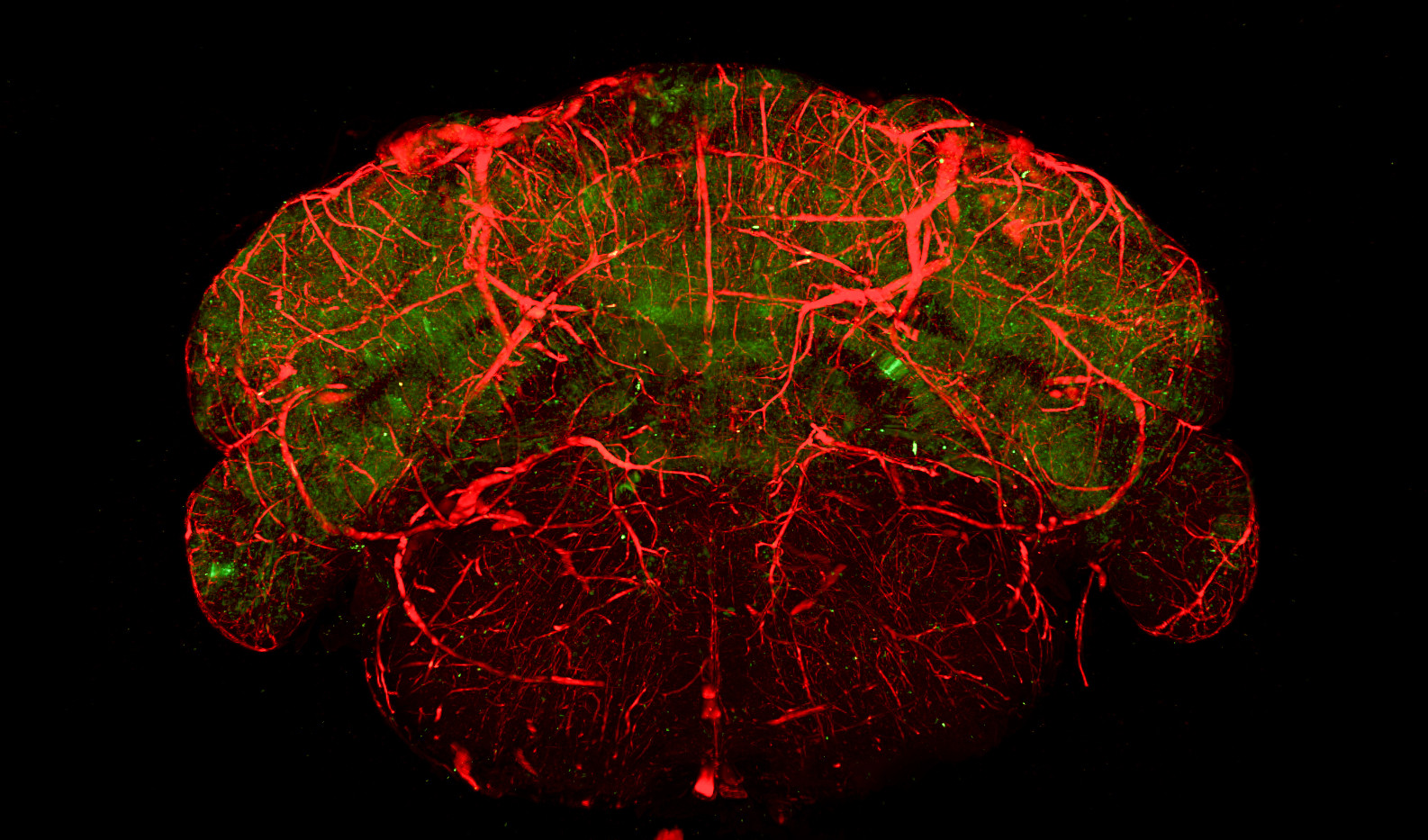 Species: Mouse Tissue: Brain Fluorophore: GFP (Green) Fluorophore: TexasRed (Red)