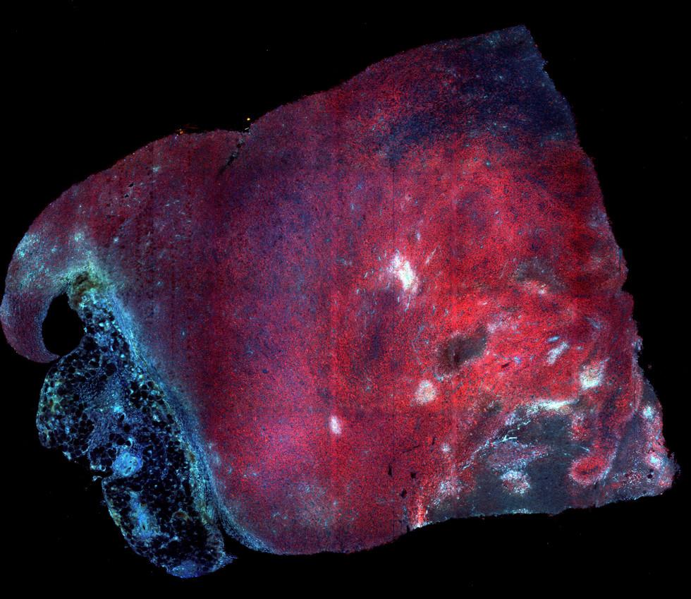 Species: Mouse Tissue: Tumor Fluorophore: mCherry (Red) Signal: SHG Collagen (Blue)