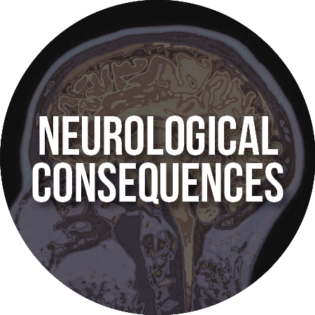 Article: Neurological Consequences