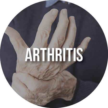 Article: Arthritis