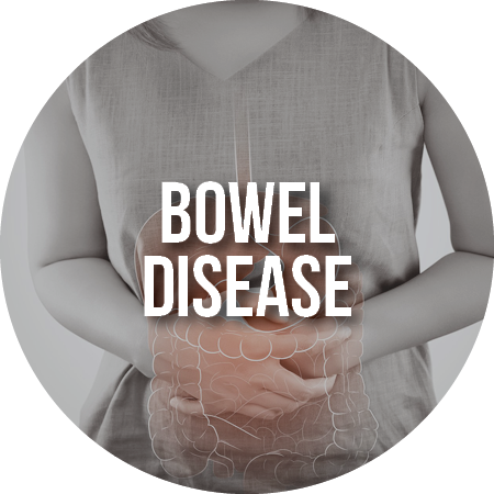 Article: Bowel Disease