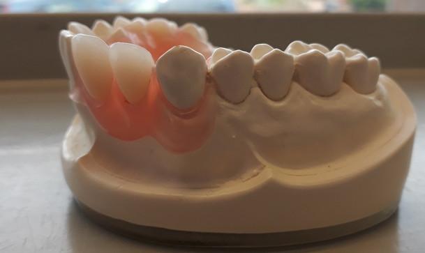 flexi-dentures