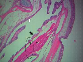 Cavidade bucal - parte interna