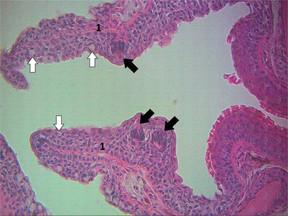 Cavidade bucal - parte intermediária
