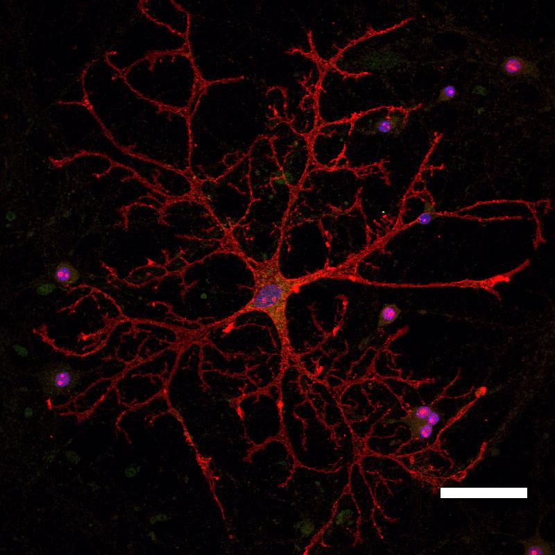 Astrocytic Heterogeneity