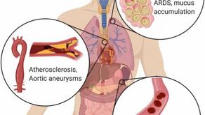 האם פעילות יתר של תאי מערכת החיסון היא שגורמת לתמותה מקורונה?