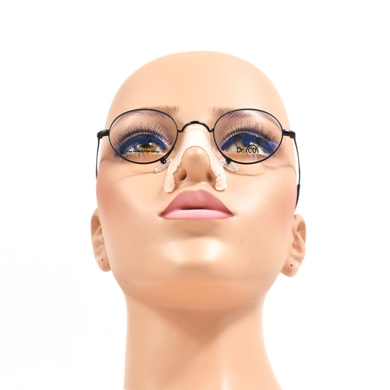 A cheek pads to support eyeglasses after rhinoplasty