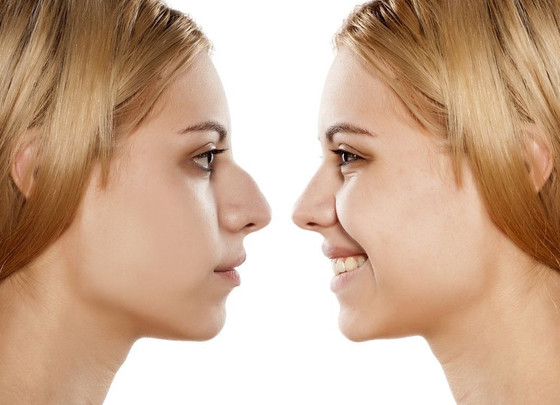 The Psychological Effects of Rhinoplasty, and How To Cope