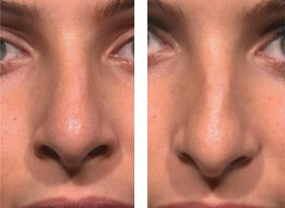 Glasses after Injection rhinoplasty(non-surgical nasal augmentation)
