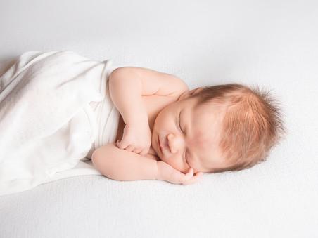 Editing Newborn Photos - Should Your Photographer Remove Stork Bites