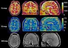 Clinically Feasible MR Fingerprinting Imaging Framework