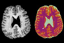 MR Fingerprinting in Epilepsy