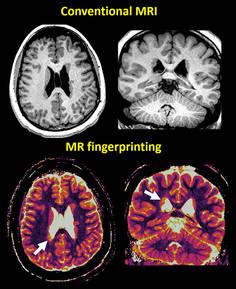 18-NEU-5853-MRIfingerprinting-inset1-600x736.jpg