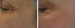 Avant et après 3 séances