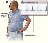 patient-wearing-cardiac-monitor.jpg