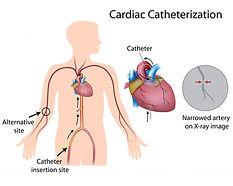 shutterstock_127004951Cardiac-Catheteriz