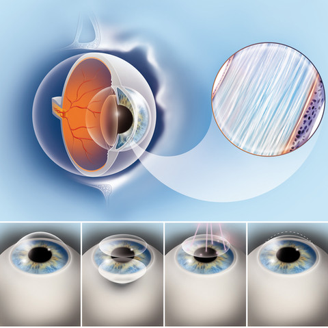 Chirurgie oculaire au laser