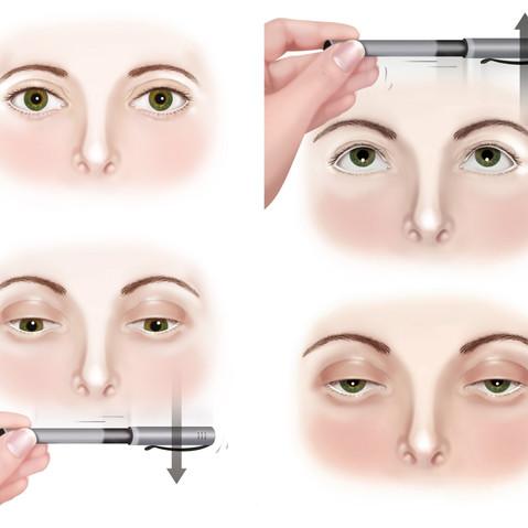 Rééducation oculaire
