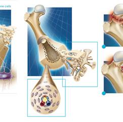 Extrait encyclopédie ostéoporose