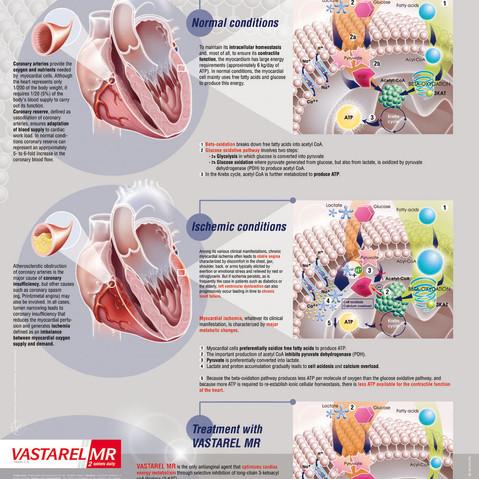Traitement cardiologie