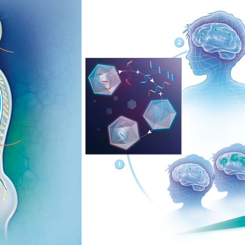 Lysogene's gene therapy