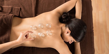 cupping-therapy-se-soigner-grace-aux-ven