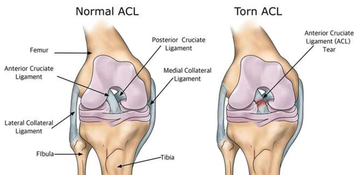acltear_edited.png