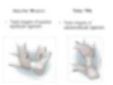 anterior-drawer-and-talar-tilt-test_edit