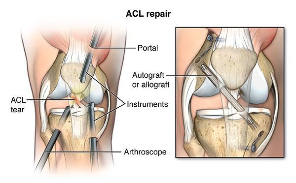 aclreconstruction2.jpeg