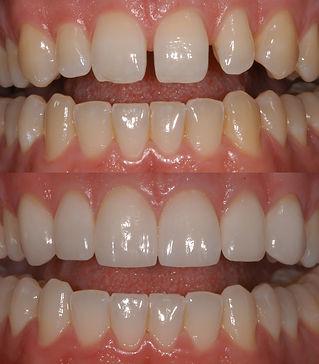 Morristown Dentist Cosmetic Veneer Smile