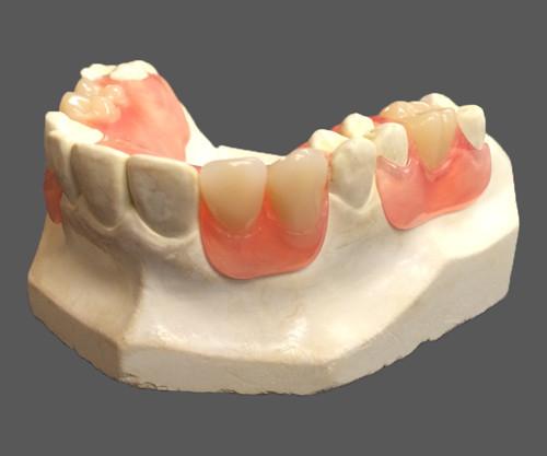 flexible, partial, denture, morristown, dentist, tn