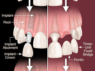 Implant or Bridge?