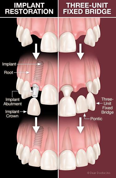Dental Bridge, Implant, Dentist