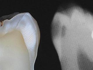 Flossing Cavities