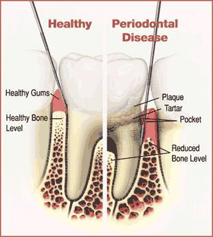 gum disease, tooth, infection, hygiene, brush, floss, morristown, dentist