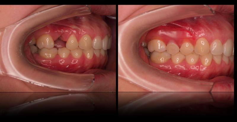 flexible, partial, pink, clasps, morristown, tn, dentist
