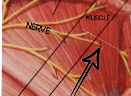 SO…WHAT REALLY IS A PINCHED NERVE?