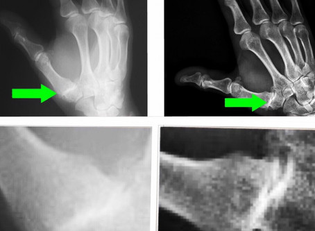 SHOCKWAVE THERAPY: ARTHRITIC THUMB BEFORE AND AFTER X-RAY