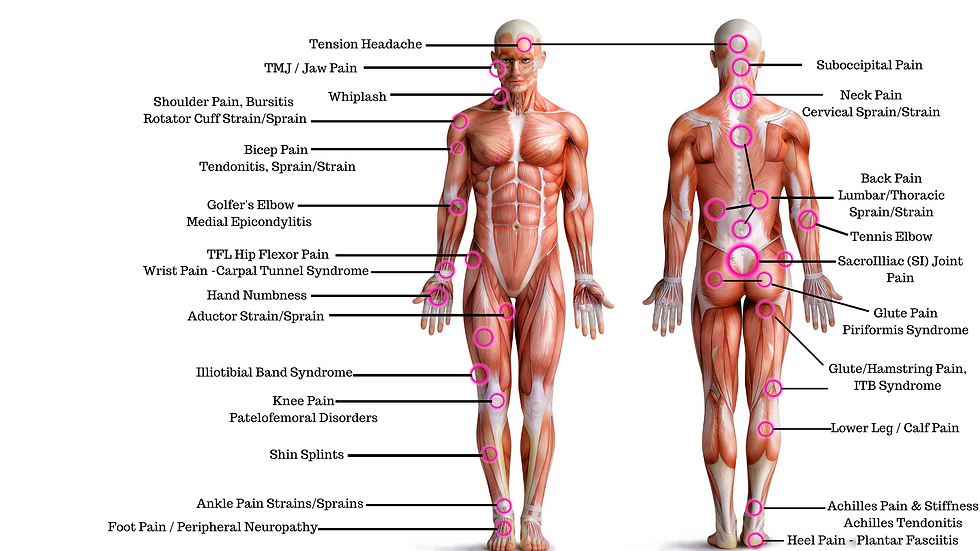 muscle guys pain chart.png