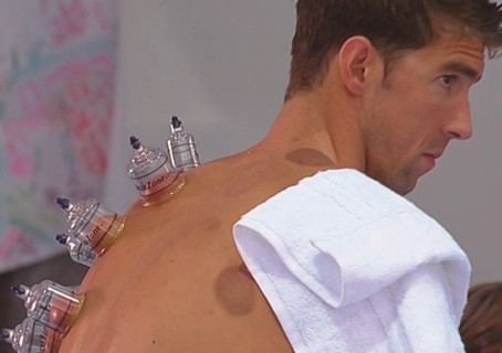 Ventosaterapia - o tratamento do Michael Phelps