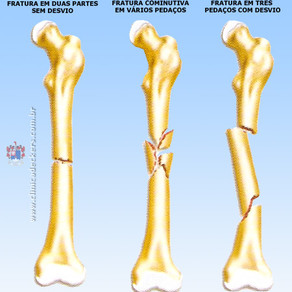 Fratura óssea