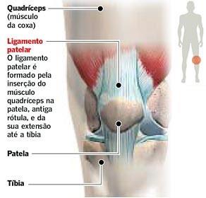 O treinamento excêntrico na tendinopatia patelar