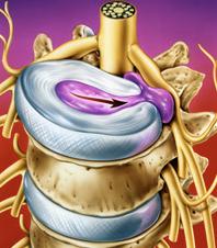 hérnia disco vertebrl protusão fisioterapia higienópolis santa cecília