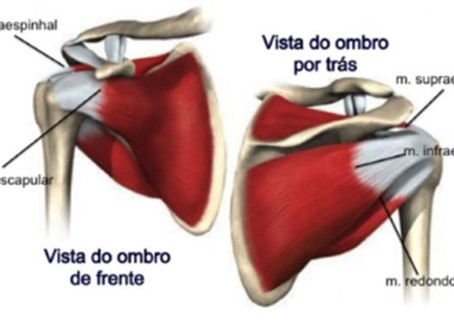 Dor no ombro: o que é tendinite do manguito rotador?