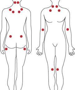 Fibromialgia: você realmente tem esse diagnóstico?