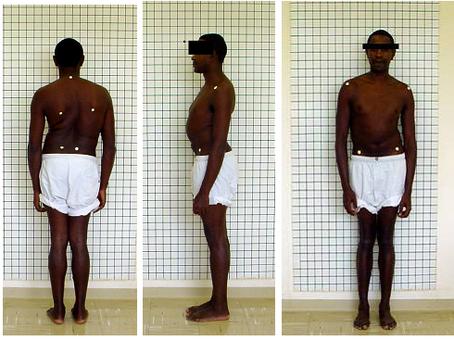 Avaliação postural: qual o melhor método?
