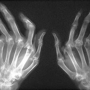 Artrite, Artrose e Pilates